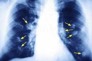 肺癌患者咳嗽拥有这几个特点看你平时有没有出现过