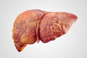 本来肝病怕一种水没事喝两口养肝排毒肝病不敢猖狂